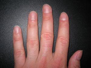 800px-Fingernails2